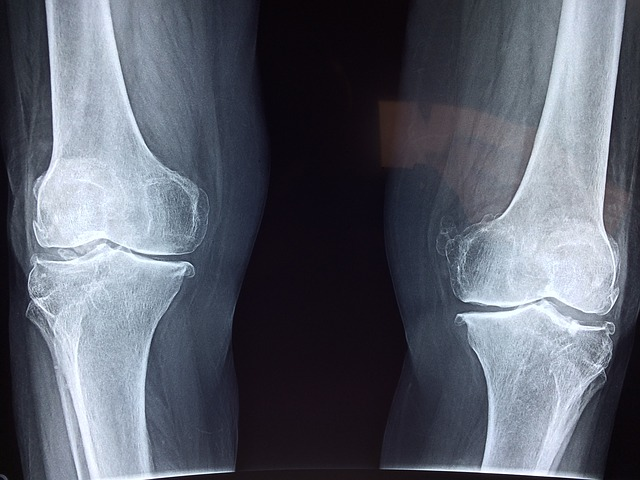 Ból kolan to bardzo poważna sprawa, której nie wolno lekceważyć